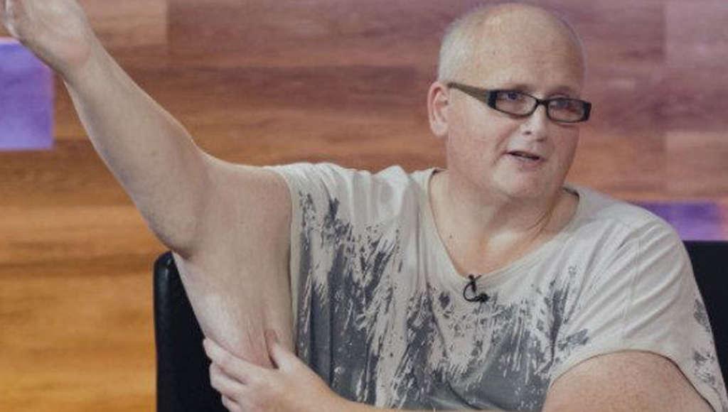 330-Pound Man's Skin-Removal Surgery | Dr  Jennifer Capla