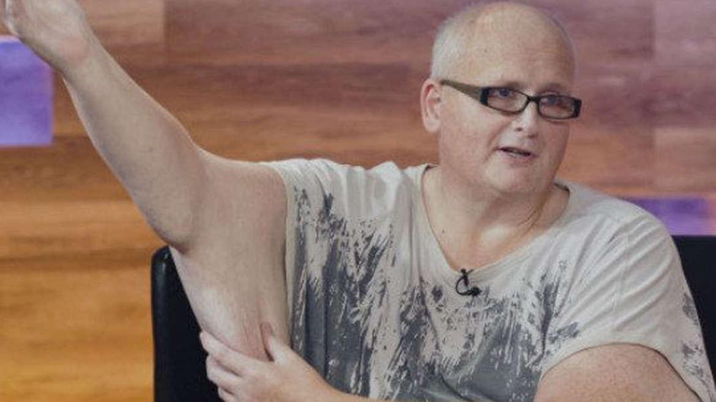 330-Pound Man's Skin-Removal Surgery